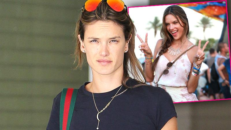 //alessandra ambrosio medical procedure headaches coachella pp
