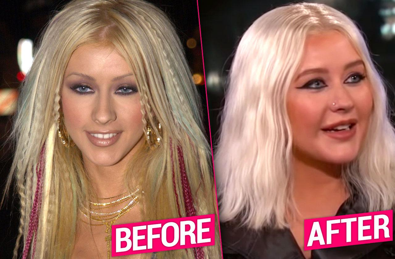 //christina aguilera jimmy kimmel face plastic surgery rumors pp