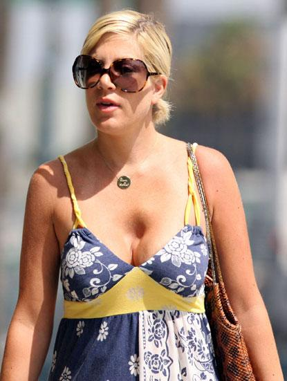Anderson before reduction loni breast Loni Anderson