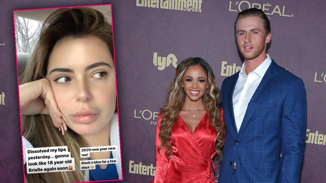 Brielle Biermann Dissolves Lip Fillers As Ex Weds