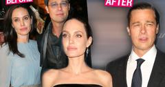 angelina jolie brad pitt plastic surgery botox
