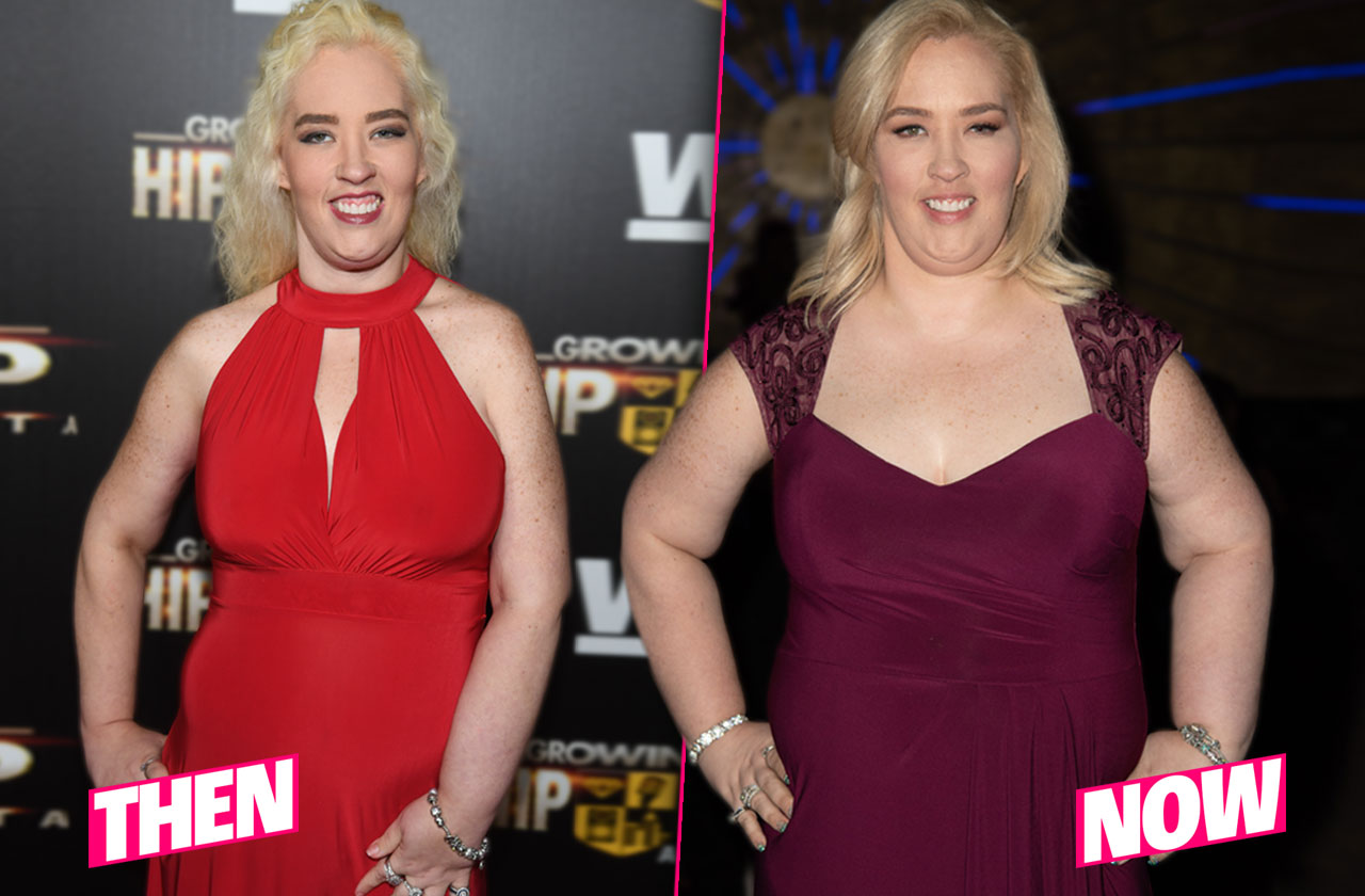 mama june weight gain after surgery