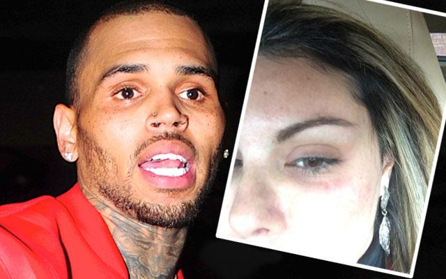 Chris Brown Accused Of Punching Woman In The Face In Las Vegas