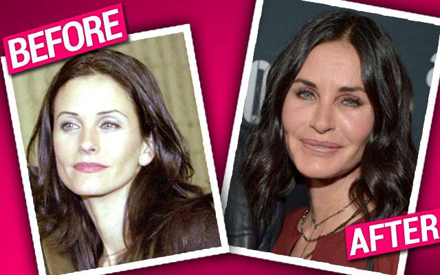 Courteney Cox Plastic Surgery Obsession