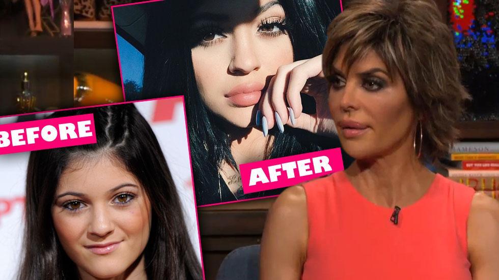Lisa Rinna Kylie Jenner Lips