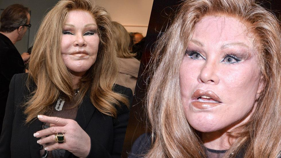 Jocelyn Wildenstein Plastic Surgery Photos