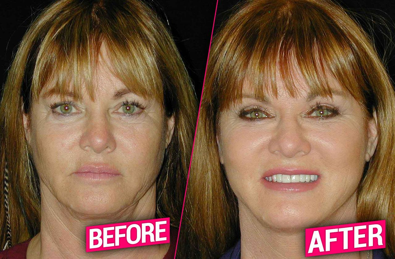 //rhoc Jeana Keough plastic surgery makeover pp