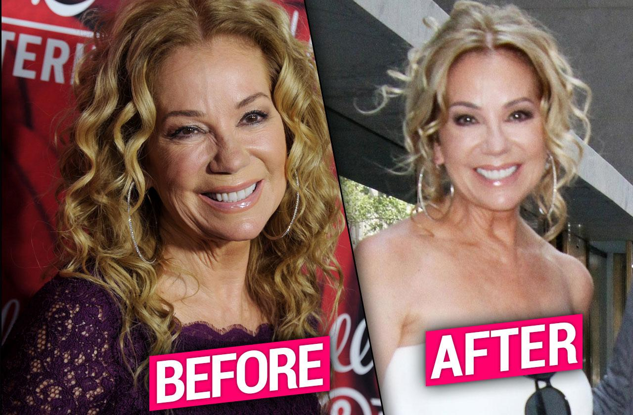 //Kathie Lee Gifford Plastic Surgery Before After pp