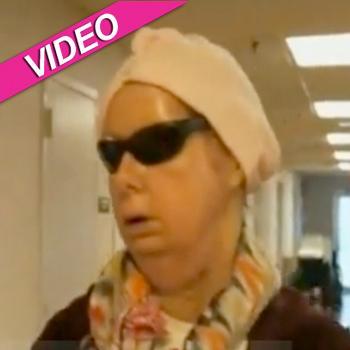 //charla nash chimp attack face transplant