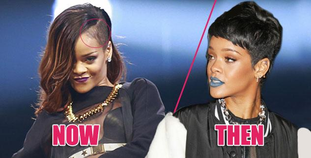 Rihanna-Suffering-Shocking-Hair-Loss-From-Over-Styling