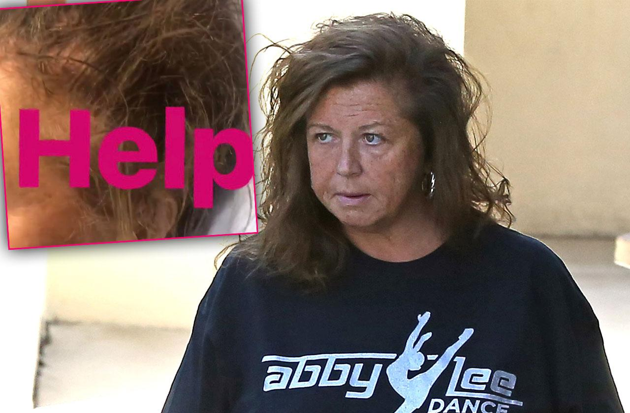 abby lee miller hair falling out cancer chemo