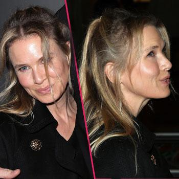 Renee Zellweger-Wide-Eyed-Frozen-Face-Botox