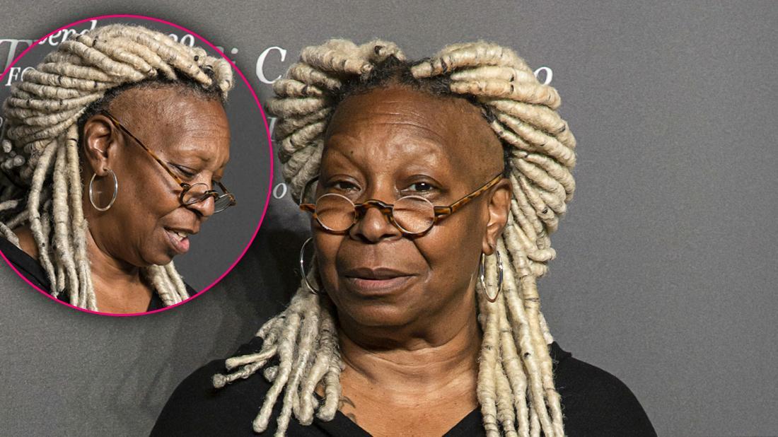 Inside Whoopi Goldberg's Hair Loss Crisis