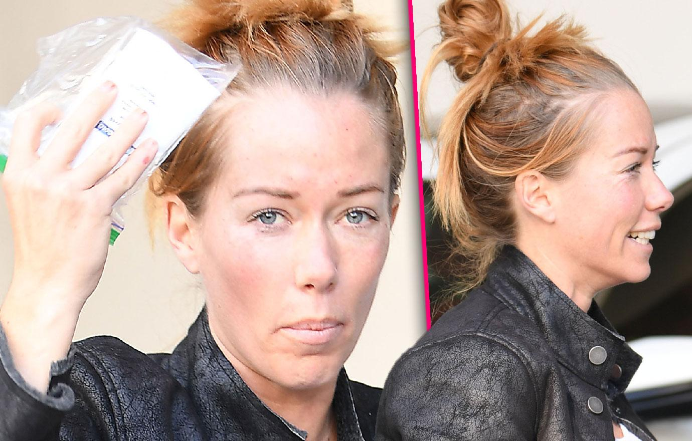 Kendra Wilkinson Gets Botox After Split From Hank