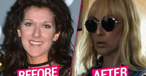 Celine Dion Unrecognizable After Plastic Surgery Nightmare