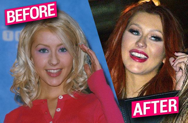 christina aguilera plastic surgery face cheek filler implants nose job