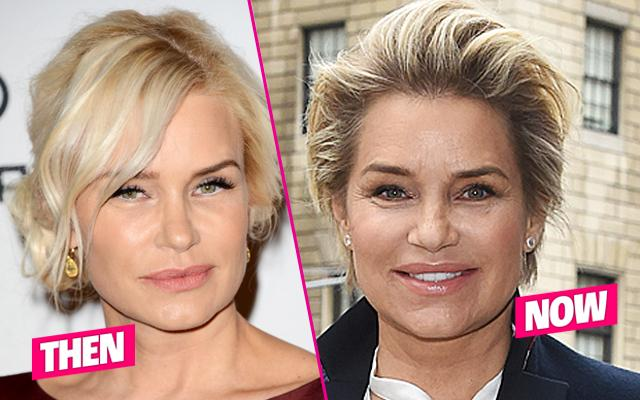 Yolanda Foster Plastic Surgery Botox Wrinkles