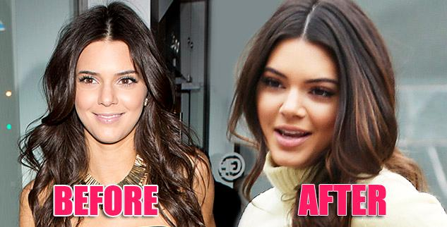 Kendall Jenner new nose