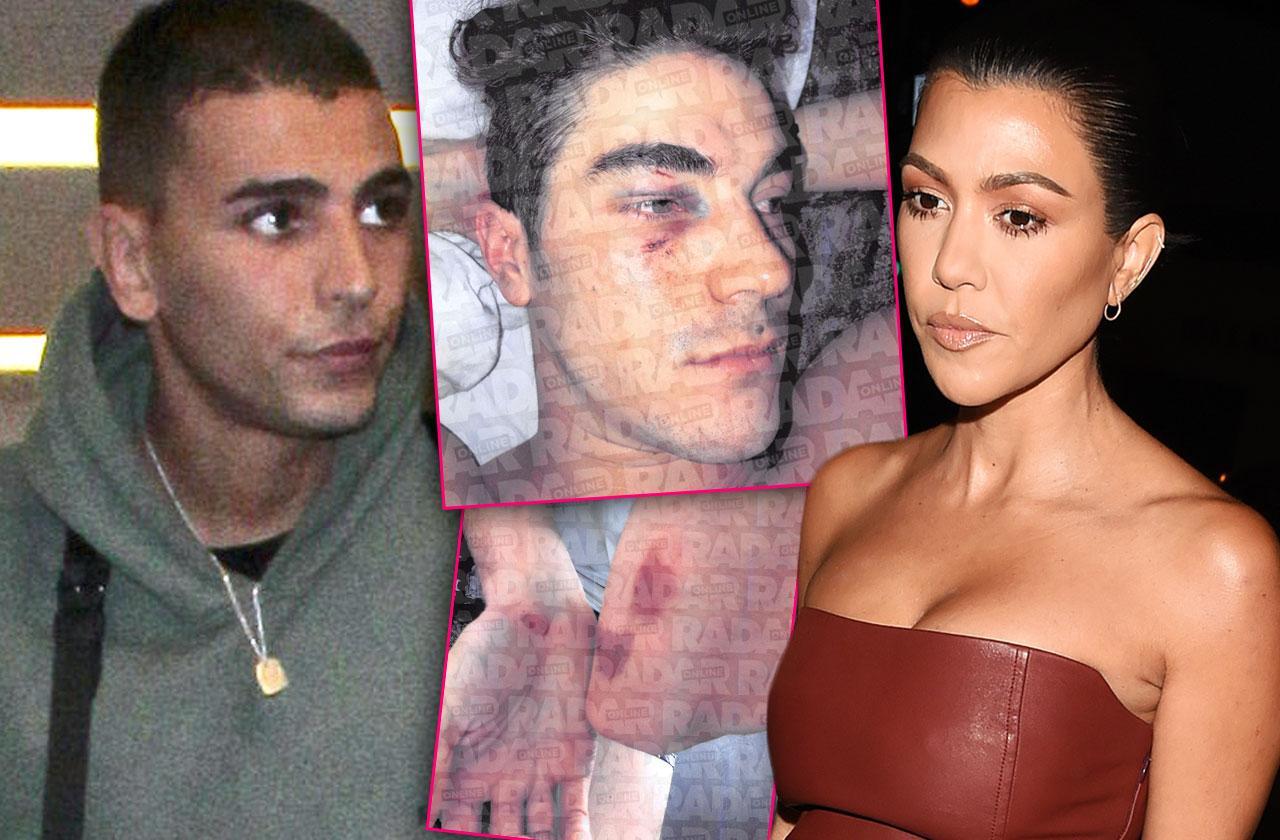 //Kourtney Kardashian Ex Younes Bendjima Threatened With Lawsuit After Nightclub Assault pp