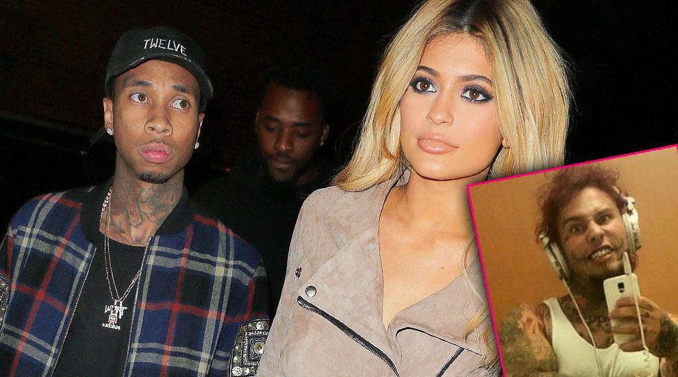 Kylie Jenner Cheating Tyga Stitches