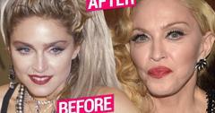 Exclusive Madonna Plastic Surgery Secrets Revealed