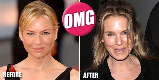 //renee_zellweger_before_and_after_wide