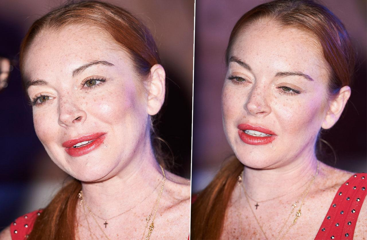 Lindsay Lohan Face Plastic Surgery