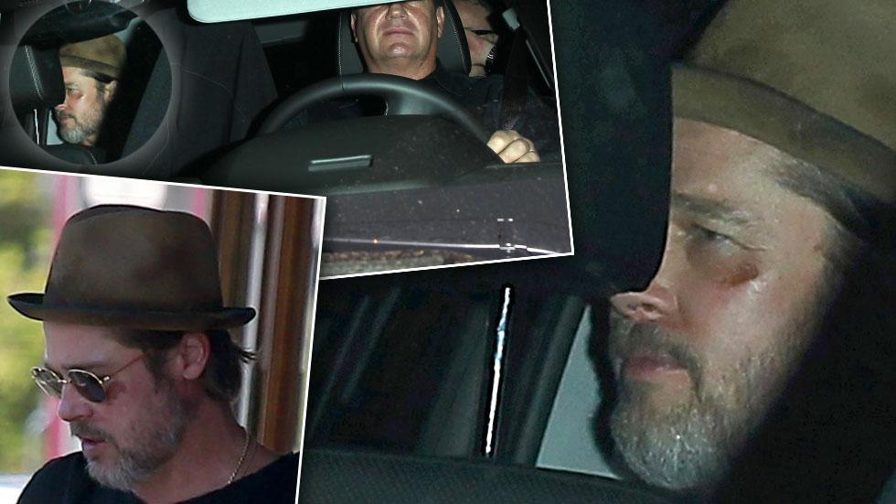 Brad Pitt Bruised Face