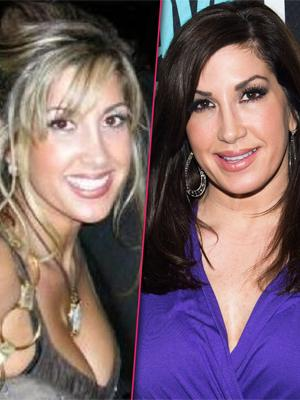 //jacqueline laurita before after plastic surgery breasts face tall