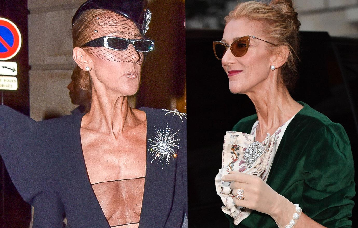 Scary Skinny Celine Dion Approves Two Life Biopics