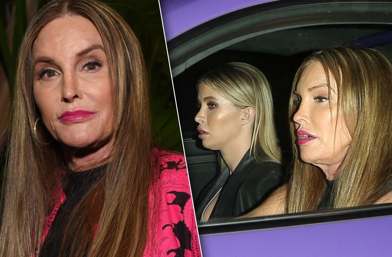 //Caitlyn Jenner plastic surgery unrecognizable new face pp