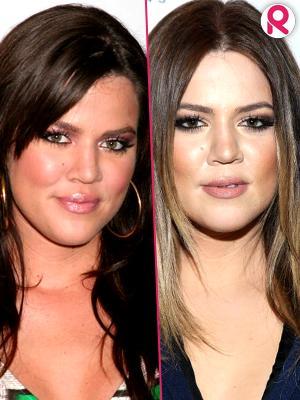 //khloe kardashian facial changes through the years tall