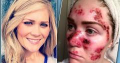 //tawny willoughby skin cancer selfie facebook