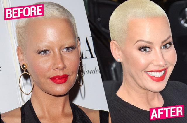 //Amber Rose Plastic Surgery