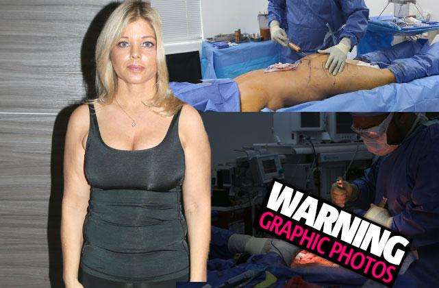 //Donna Derrico Baywatch Plastic Surgery Lipo Tummy Tuck Before pp