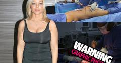 //Donna Derrico Baywatch Plastic Surgery Lipo Tummy Tuck Before pp