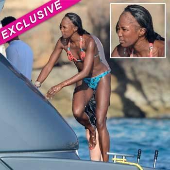 //naomi campbell bald spot splash