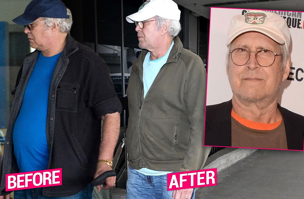 Chevy Chase Gastric Bypass Stomach Surgery Down 110 Pounds