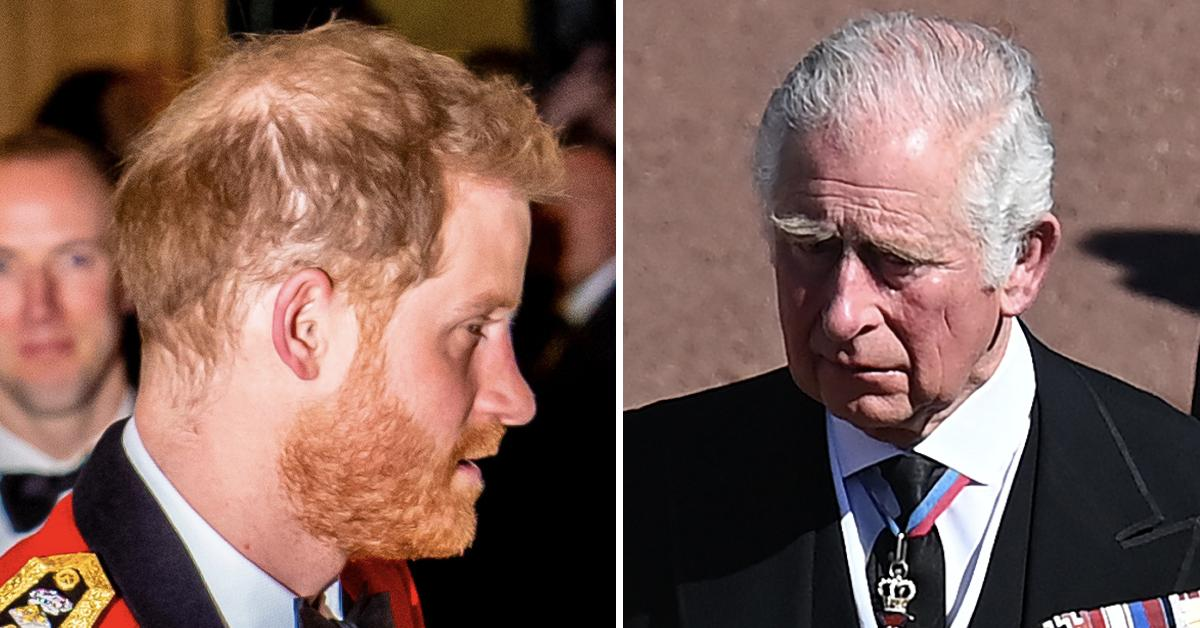 prince harry hair loss pp