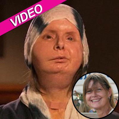 //charla nash new face video
