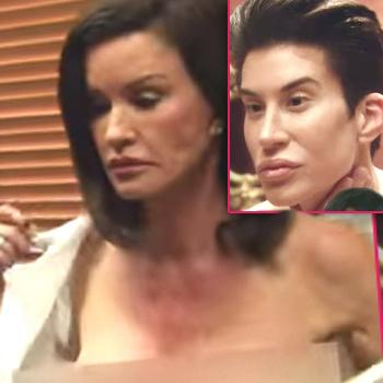 //botched e tv show fix hollywood worst plastic surgery cases sq copy
