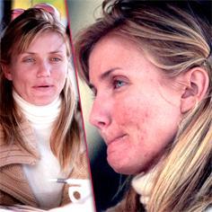 //cameron diaz talks acne problem sq