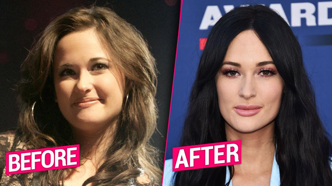 Kacey Musgraves Closeup Smiling Split With Before and After Buttons