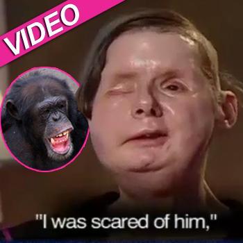 //charla nash chimp attack abclocal