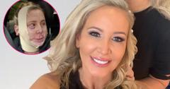 Shannon Beador takes a selfie. Inset right, Shannon Beador appears before cameras after her operation.