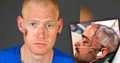 //redmond oneal stabbing victim years recovery disturbing photos PP