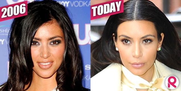 //kim kardashian hairline  today  wide