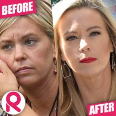 //kate gosselin plastic surgery radar  sq