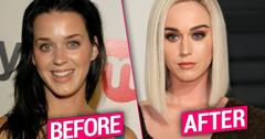 //Katy Perry Plastic Surgery Lies pp