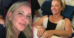 Fished-Face Shannon Beador Gone Overboard Fillers Fat Freezing